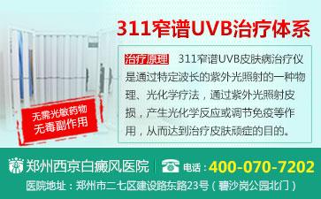 郑州最好治疗白癜风的医院
