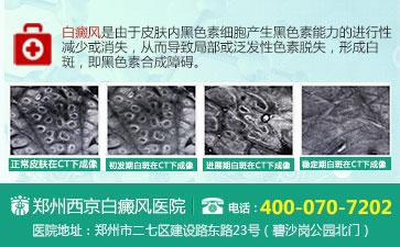 郑州白癜风治愈高的医院